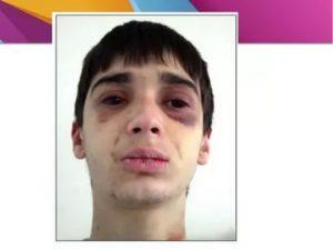 Непонятный симптом после перелома челюсти