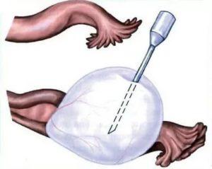 Биопсия яичников
