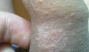Красная полоса, сухость, блеск кожи головки полового члена