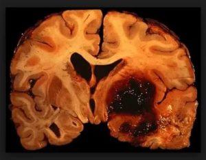 Смерть от геморрагического инсульта