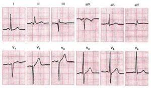 Признаки очагового рубцовых изменений нижней стенки левого желудочка