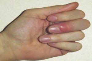 Полупрозрачная шишка возле ногтя на пальце руки