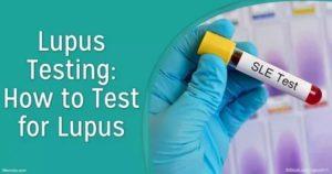 Люпус тест