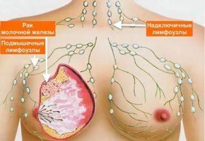 Фиброаденома, болит подмышкой, плечо