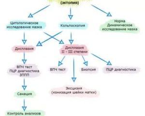Эрозия Шейки матки (дисплазия 3 ст)