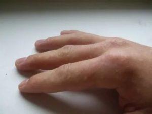 Зуд и высыпания на пальцах ног