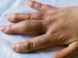 Не сходит отек на суставе пальца после операции