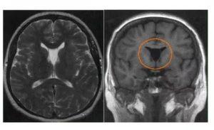 Множественные кисты в мозолистом теле и боковых желудочках