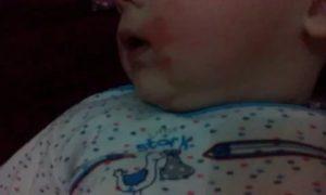Красная шея у ребенка в 3, 5 месяцев