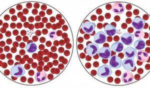 Лимфоциты в крови 54