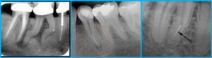 Неполностью запломбирован канал в зубе под коронкой