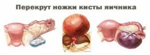 Прострелы в области яичника