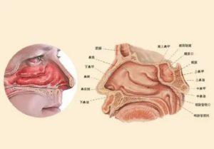 Элементы носовых раковин увеличение в объеме