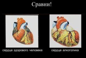После энергетика с алкоголем отдышка и боли в сердце