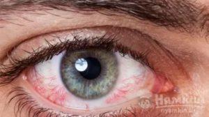 Чешеться и зудит глаз после лазерной коррекции
