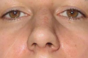 Припухлость щеки от синусита