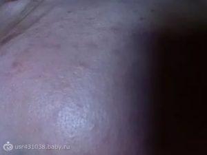Прыщ на груди у кормящей мамы