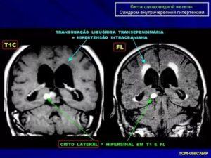 Длительный субфебрилитет, кистозная перестройка шишковидной железы