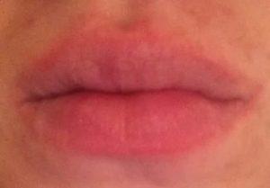 Покраснение контура вокруг губ