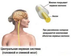 Рассеяный склероз или ВСД?
