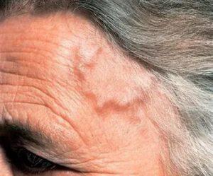 Вздутие вен на голове и пульсация