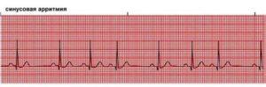 Есть ли проблемы с сердцем по результатам велоЭМ