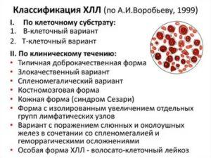 B-клеточный хронический лимфоцитарный лейкоз
