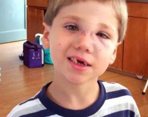 Ушиб носа у ребенка 2.5 лет