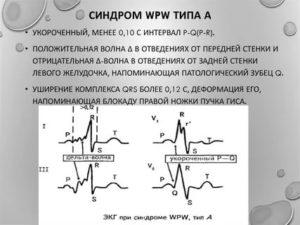 WPW синдром