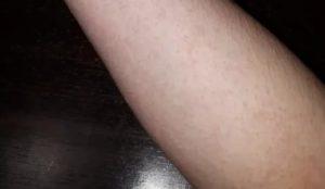 Непонятная сыпь под кожей