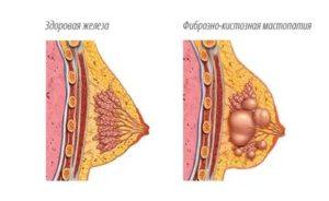 Фиброзно-кистозная мастопатия, отдающие боли в подмышку