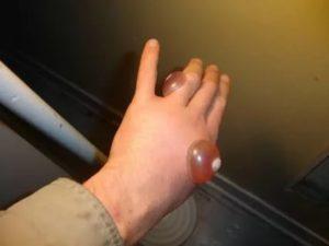 Воспаление и боли в ноге - после прижигания жидким азотом