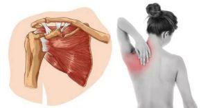 Боль при глотании отдается в ключицу и лопатку
