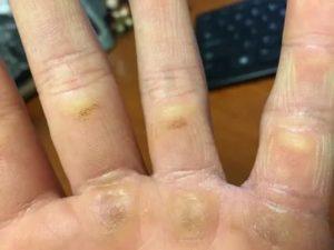 Непонятные болячки на руках и ногах