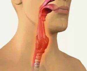 Проблема с мокротой в горле