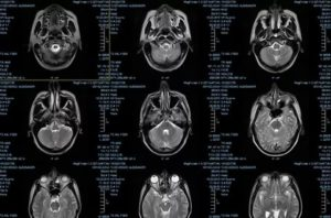 МРТ-расшифровка