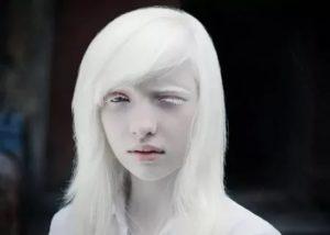 Бледная кожа с рождения