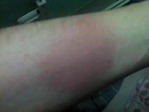 Красное огромное пятно на руке и чешиться