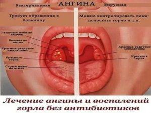 Возможно ли появление ОРВИ после ангины?