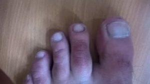 Красные пятна у основания большого пальца (на двух руках)