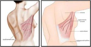 Боль в рёбрах между подмышкой и грудью