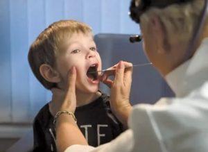 Кость в горле у ребенка
