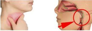 Длительные боли в горле справа и слизь