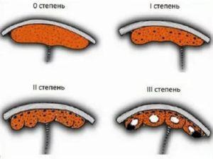 Преждевременное старение плаценты + кальциноз