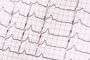 Неритмично бьется сердце экстрасистолия