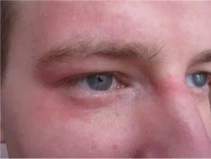 Покраснение кожи под глазами и на переносице