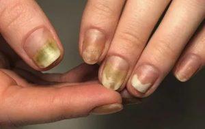 Пустота под ногтями