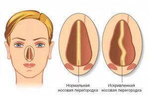 Искривление носовой перегородки и ВЛЭК