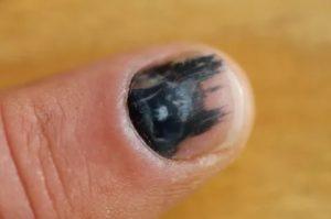 Раны под ногтями