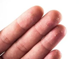 Лопается и облазит кожа на пальцах